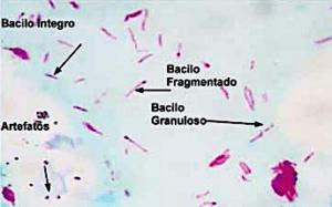 bacilos de hansen vistos ao microscópio