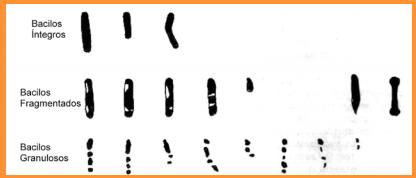 tipos de bacilos no exame hanseniase