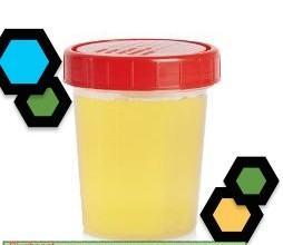 Exame eas urina