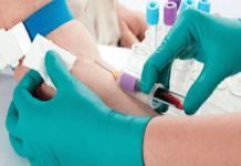 quando coletar exame sangue