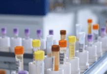 exame CEA, coleta do sangue e resultados do teste