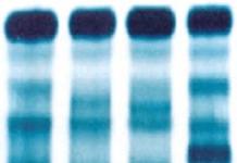 eletroforese de hemoglobina exame de sangue