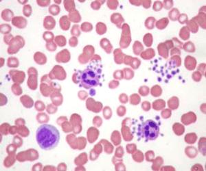 PDW exame resultado plaquetas