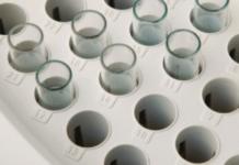 Teste de látex FR fator reumatóide