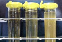 exame de urina nitrito positivo tomar medicamento