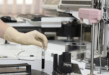 Teste laboratorial - exame gastrina