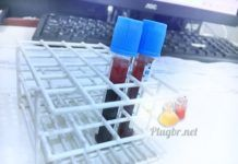 Exame complemento C3 coleta do sangue
