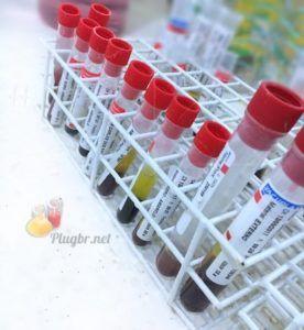 exame anti transglutaminase na doença celíaca