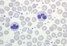 plaquetas aumentadada leucocitose