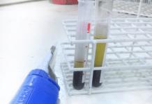exame de sangue CA 72 4 coleta e resultado