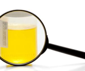 Presença de raras bactérias no resultado de exame de urina
