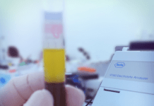 exame de sangue coleta de material