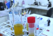 exame de sangue tubo de ensaio coleta
