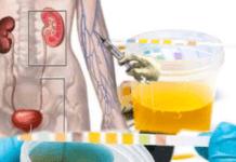 alteração em exame de urina após uso de contraste
