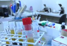 teste sangue haptoglobina exame plugbr.net