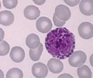 basófilo no resultado do hemograma