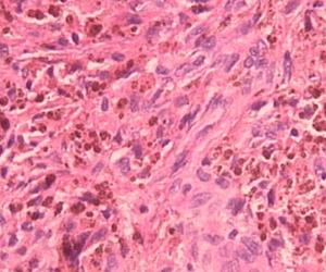 pigmentos por hemossiderina exame