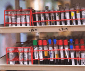 exame anti mitocondria